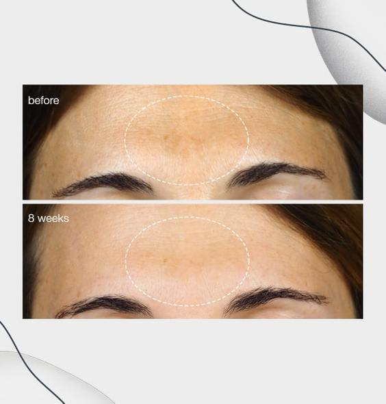 PowerBright Dark Spot Serum Example
